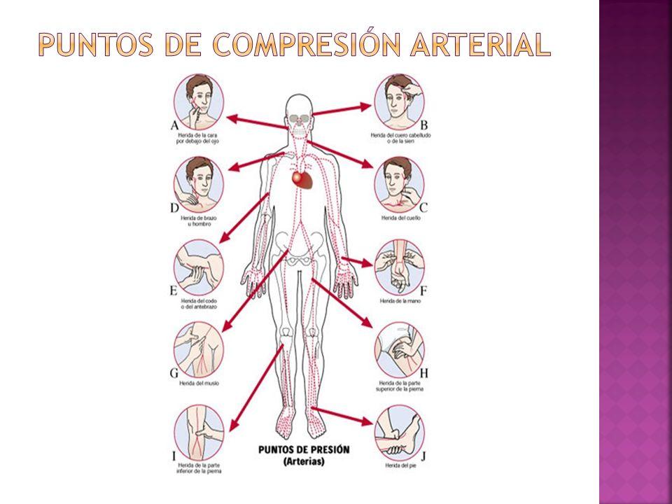 PUNTOS DE COMPRESIÓN ARTERIAL
