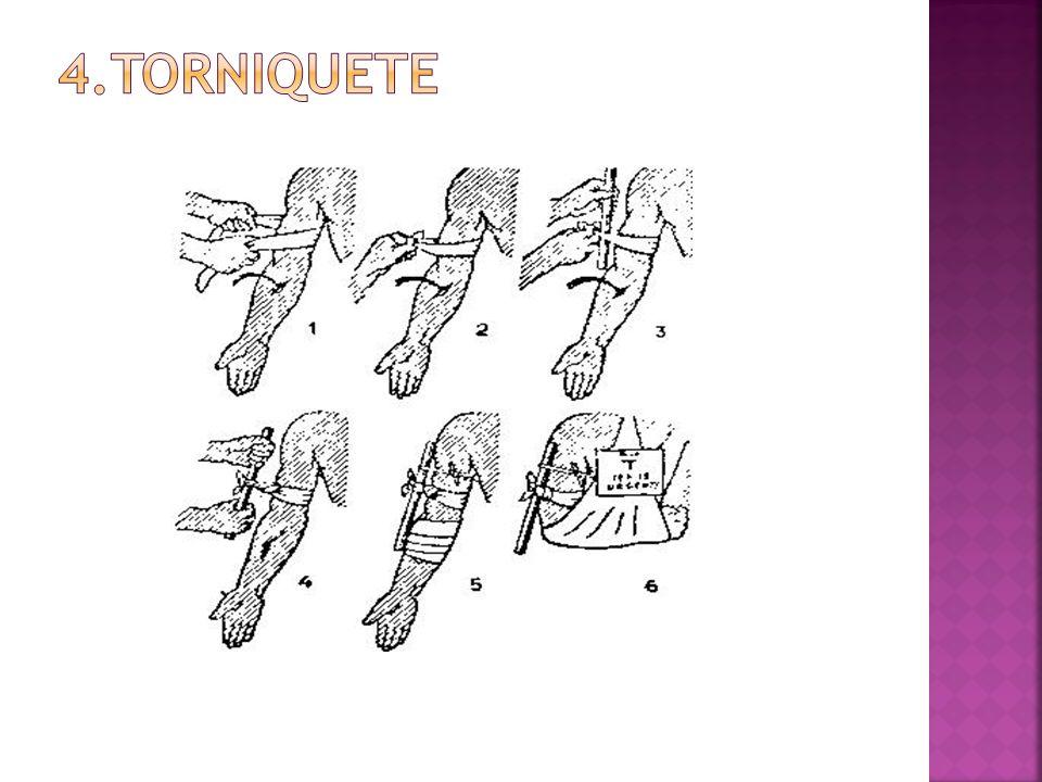 4.TORNIQUETE