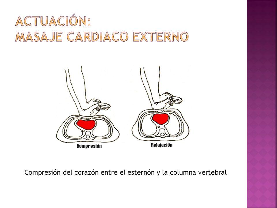 Actuación: masaje cardiaco externo