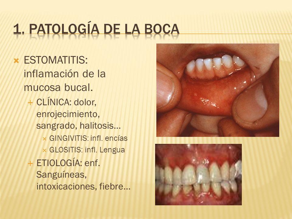 1. Patología de la boca ESTOMATITIS: inflamación de la mucosa bucal.