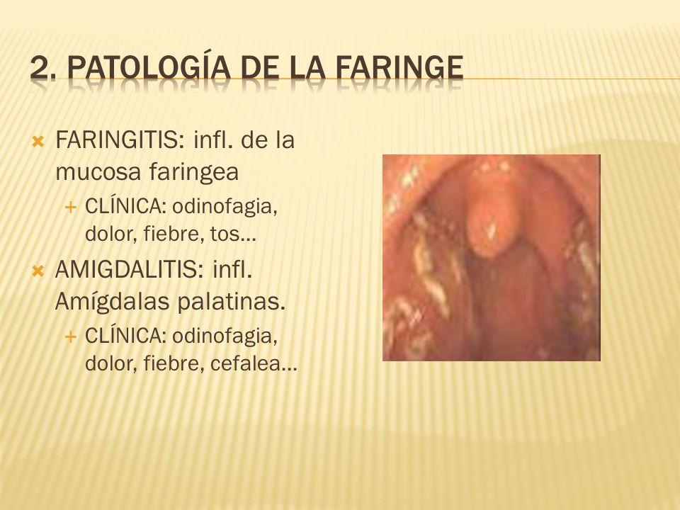 2. Patología de la faringe