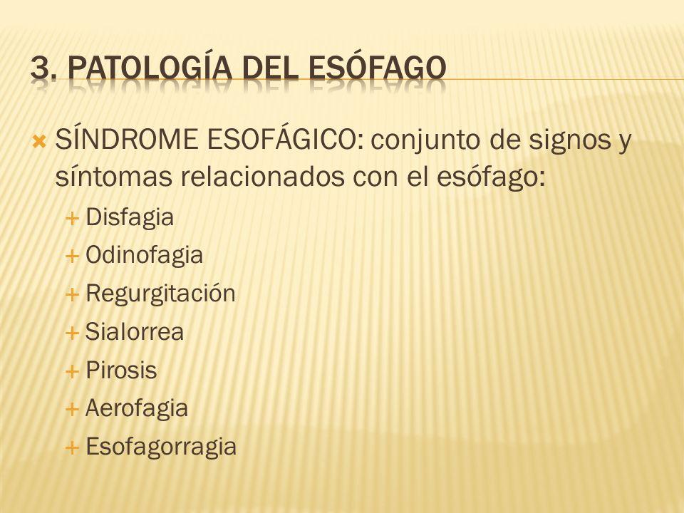 3. Patología del esófago SÍNDROME ESOFÁGICO: conjunto de signos y síntomas relacionados con el esófago: