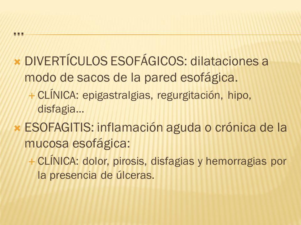 ... DIVERTÍCULOS ESOFÁGICOS: dilataciones a modo de sacos de la pared esofágica. CLÍNICA: epigastralgias, regurgitación, hipo, disfagia...