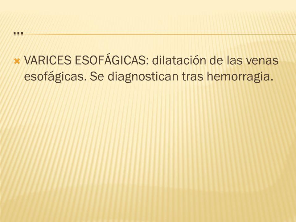 ... VARICES ESOFÁGICAS: dilatación de las venas esofágicas. Se diagnostican tras hemorragia.