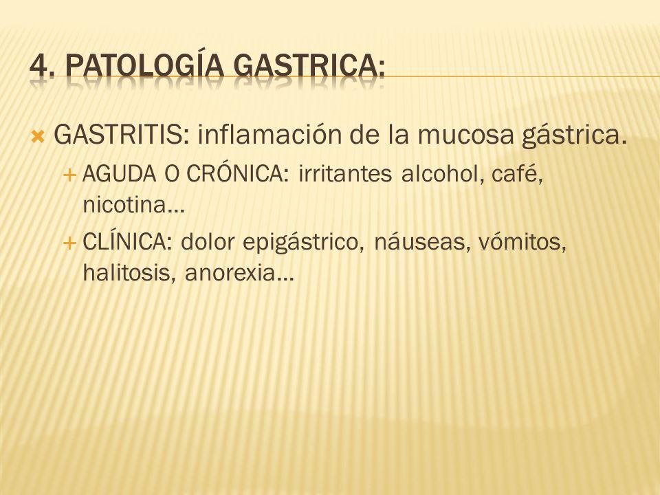 4. PATOLOGÍA GASTRICA: GASTRITIS: inflamación de la mucosa gástrica.