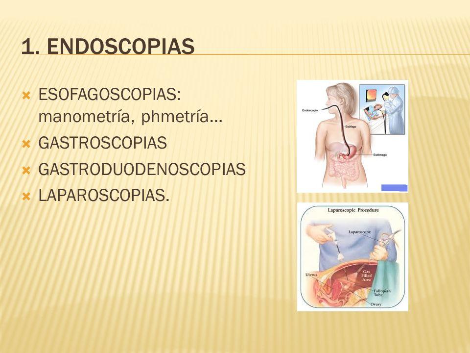 1. ENDOSCOPIAS ESOFAGOSCOPIAS: manometría, phmetría… GASTROSCOPIAS