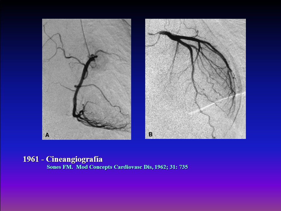 1961 - Cineangiografía Sones FM. Mod Concepts Cardiovasc Dis, 1962; 31: 735