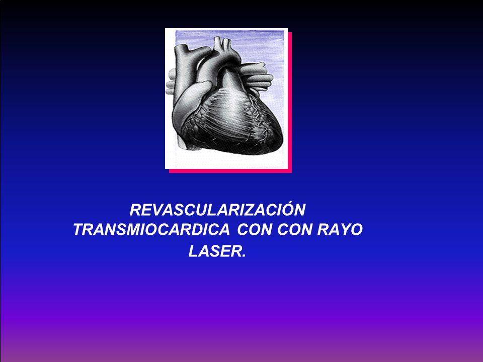 REVASCULARIZACIÓN TRANSMIOCARDICA CON CON RAYO LASER.