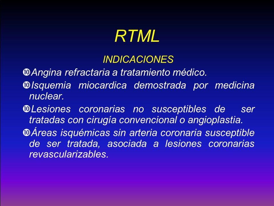 RTML INDICACIONES Angina refractaria a tratamiento médico.