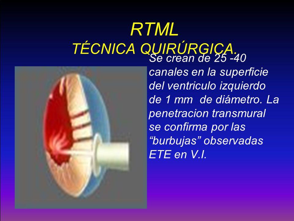 RTML TÉCNICA QUIRÚRGICA.