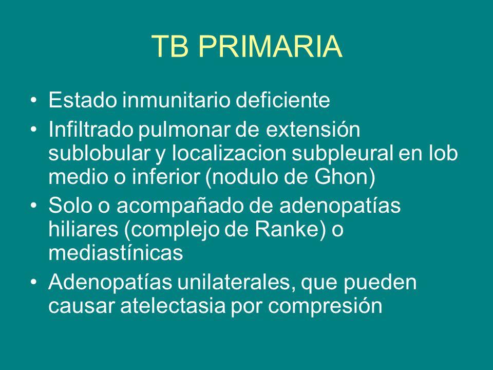 TB PRIMARIA Estado inmunitario deficiente