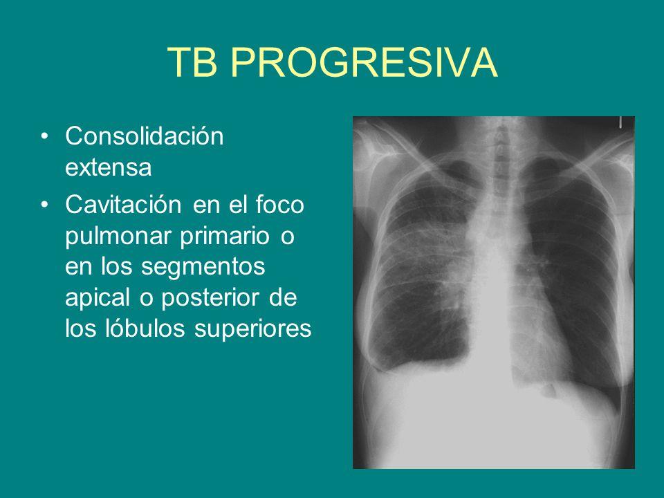 TB PROGRESIVA Consolidación extensa