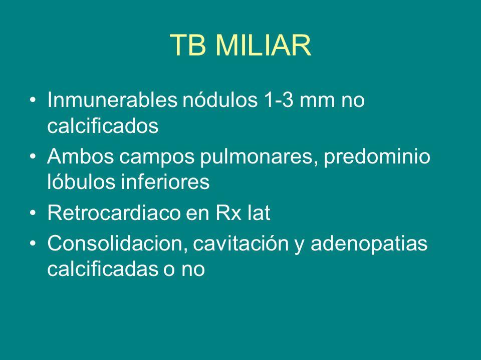 TB MILIAR Inmunerables nódulos 1-3 mm no calcificados