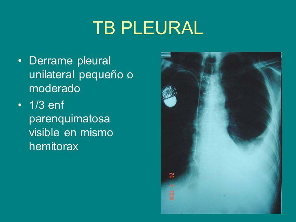 TB PLEURAL Derrame pleural unilateral pequeño o moderado