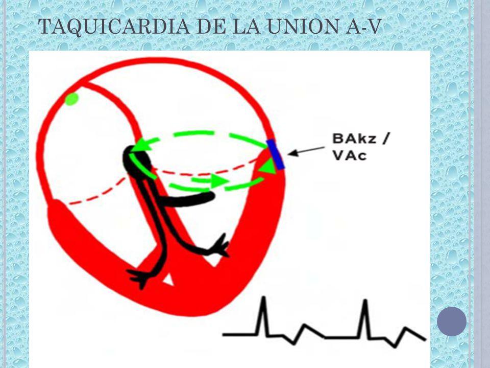 TAQUICARDIA DE LA UNION A-V