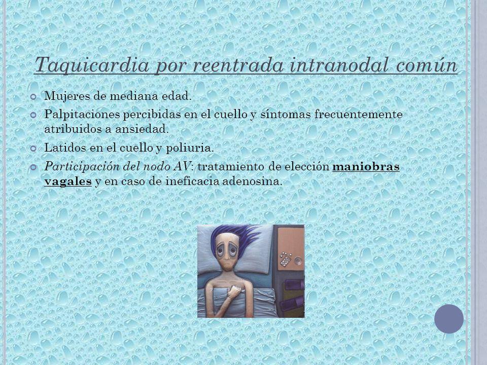 Taquicardia por reentrada intranodal común