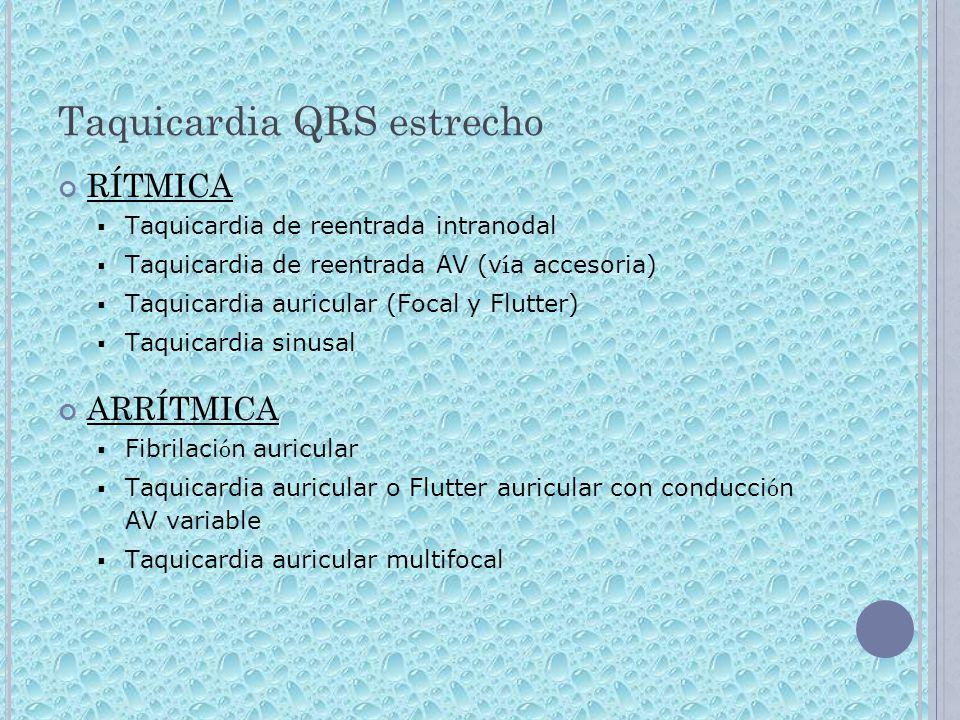 Taquicardia QRS estrecho