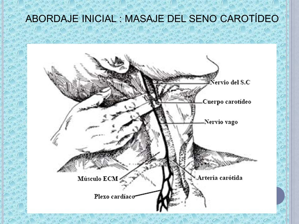 ABORDAJE INICIAL : MASAJE DEL SENO CAROTÍDEO