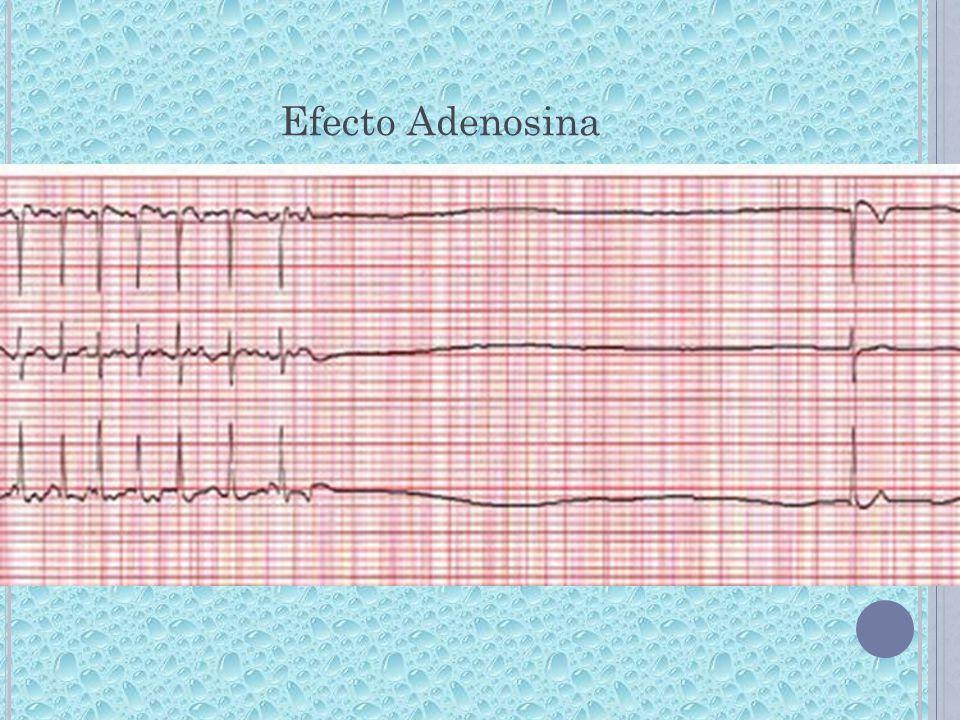 Efecto Adenosina