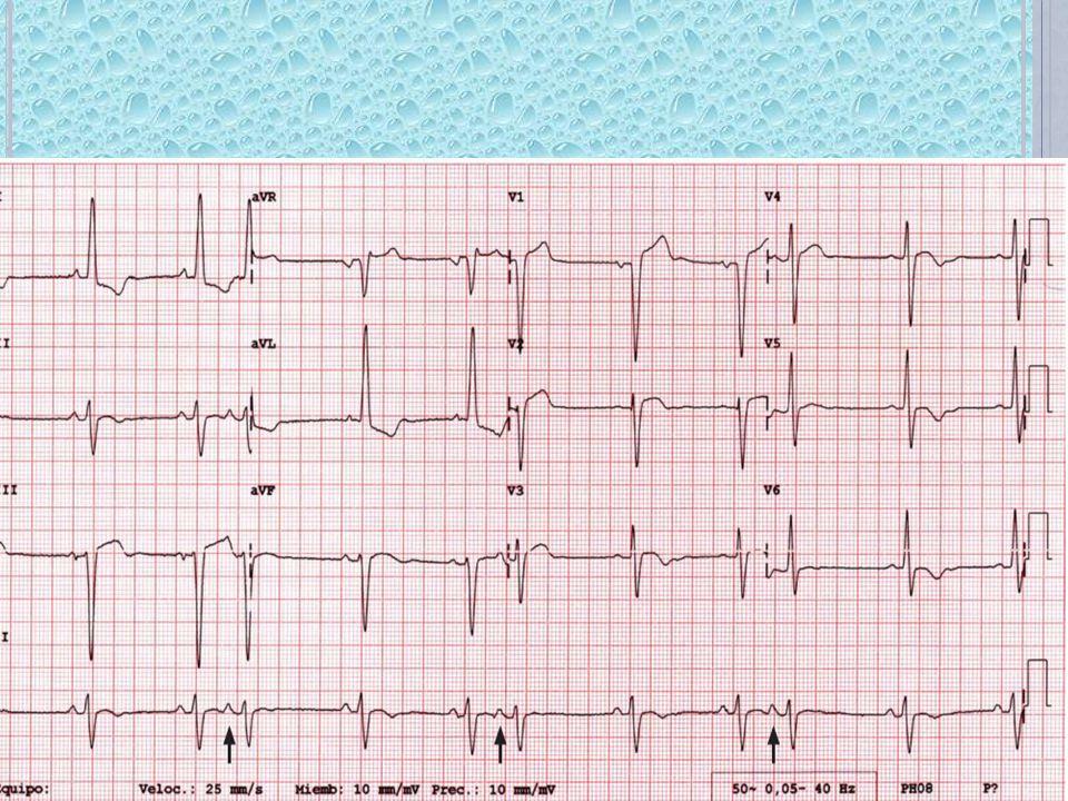 TRIGEMINISMO AURICULAR: Cada 2 ondas P sinusales hay un extrasistole auricular