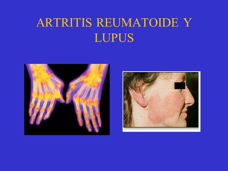 ARTRITIS REUMATOIDE Y LUPUS