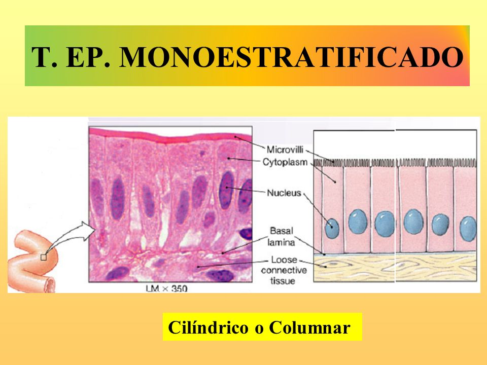 T. EP. MoNOESTRATIFICADO