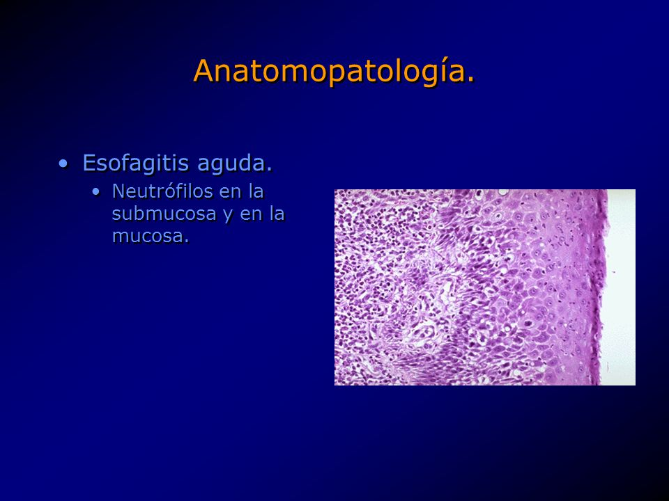 Anatomopatología. Esofagitis aguda.