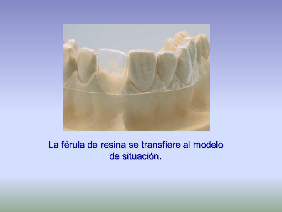 La férula de resina se transfiere al modelo