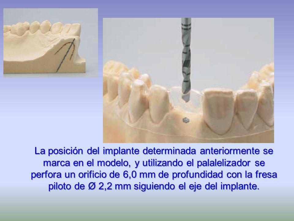 La posición del implante determinada anteriormente se marca en el modelo, y utilizando el palalelizador se perfora un orificio de 6,0 mm de profundidad con la fresa piloto de Ø 2,2 mm siguiendo el eje del implante.