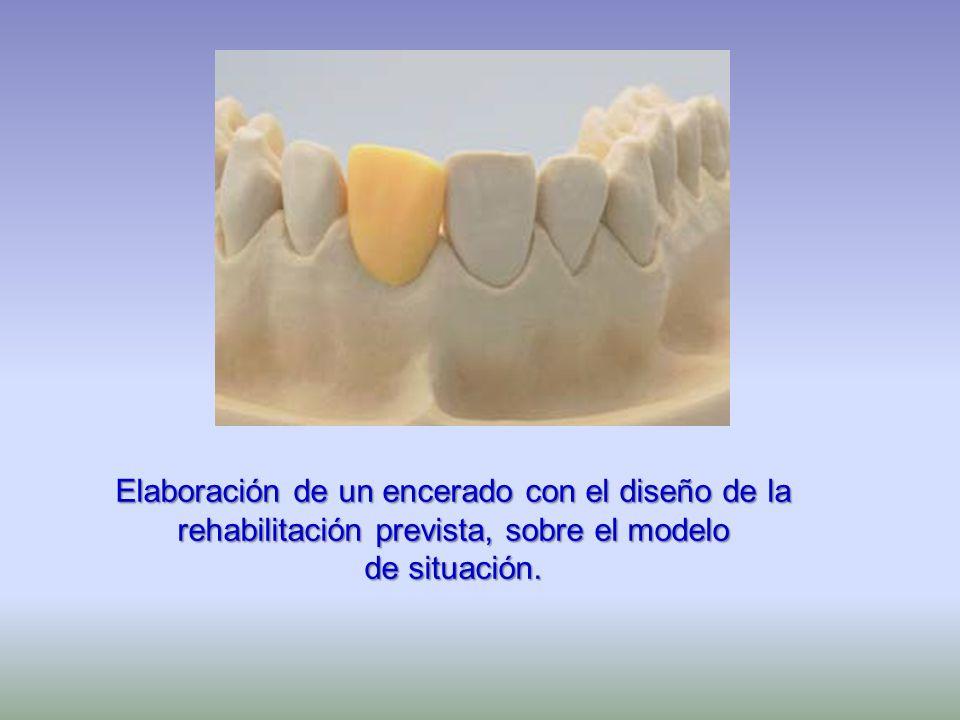 Elaboración de un encerado con el diseño de la rehabilitación prevista, sobre el modelo