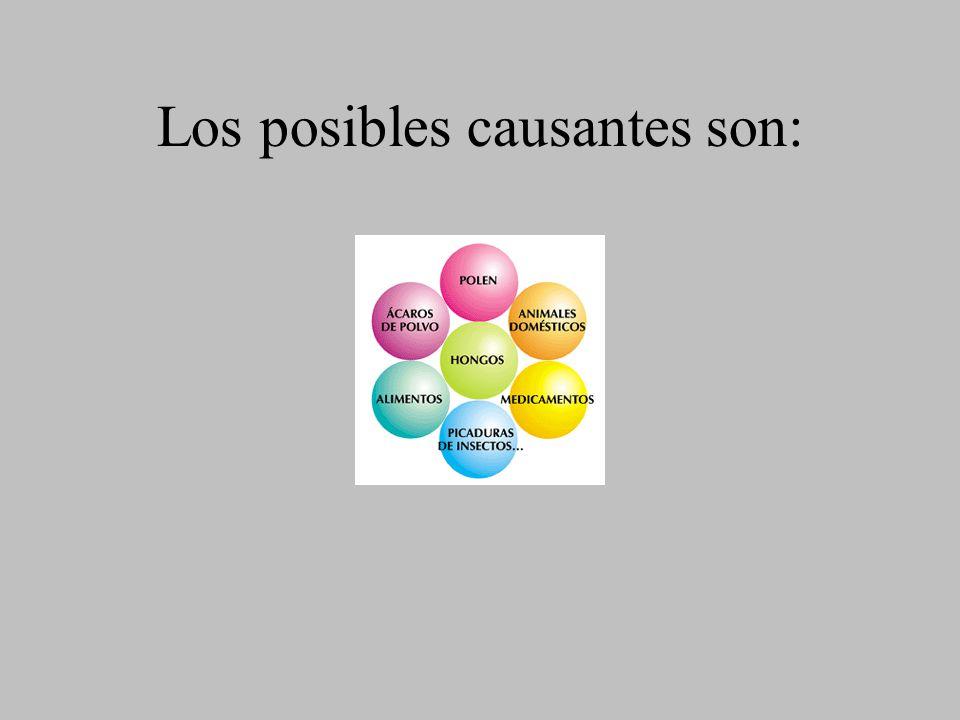 Los posibles causantes son: