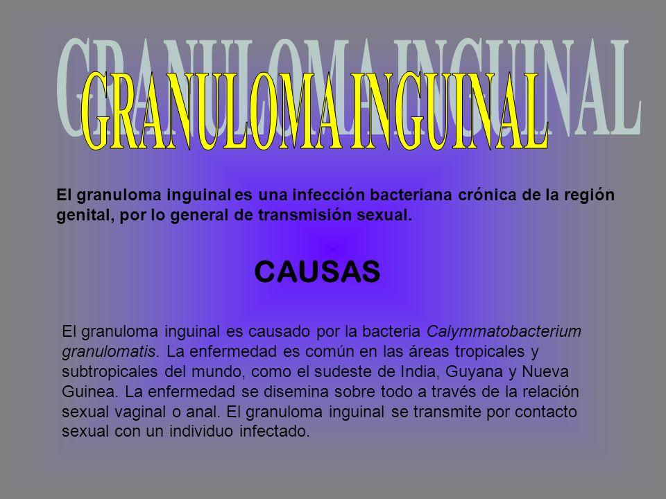 GRANULOMA INGUINAL CAUSAS