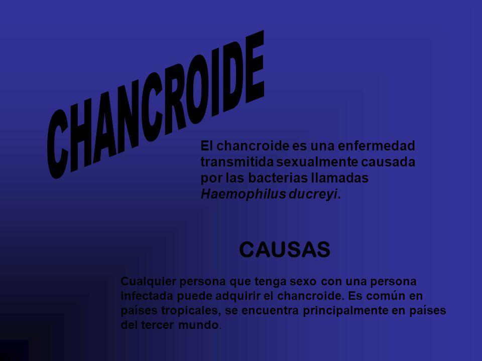 CHANCROIDE El chancroide es una enfermedad transmitida sexualmente causada por las bacterias llamadas Haemophilus ducreyi.