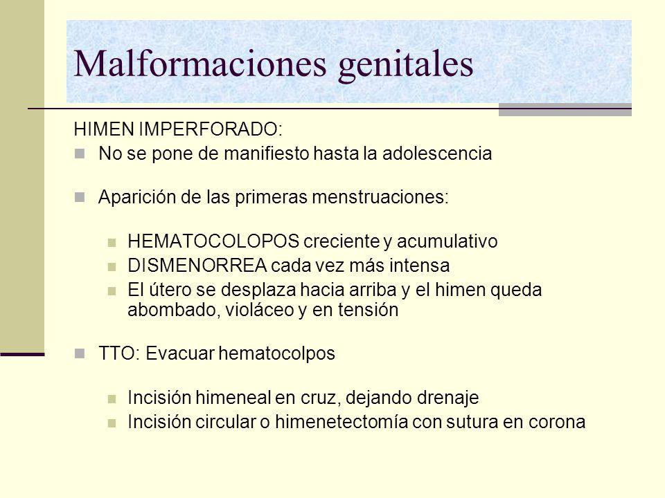 Malformaciones genitales