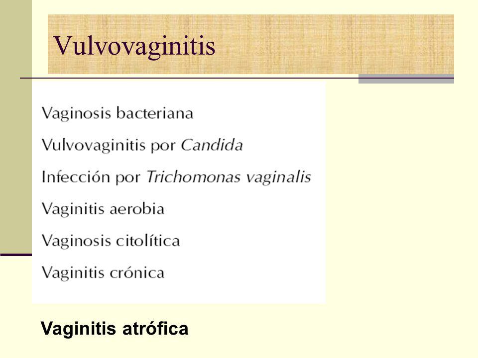 Vulvovaginitis Vaginitis atrófica