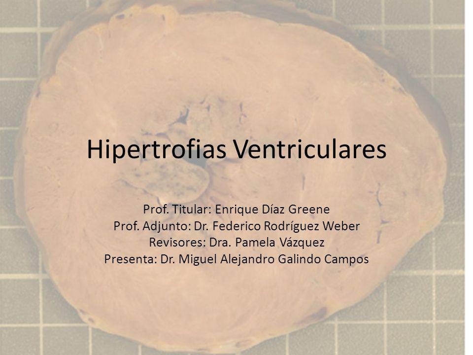 Hipertrofias Ventriculares