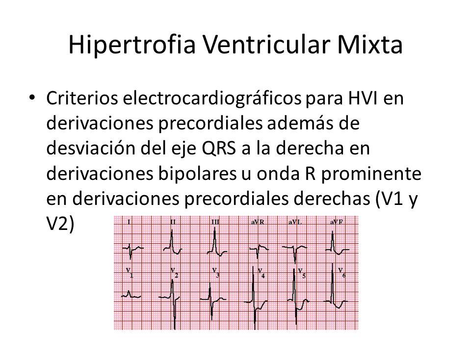 Hipertrofia Ventricular Mixta