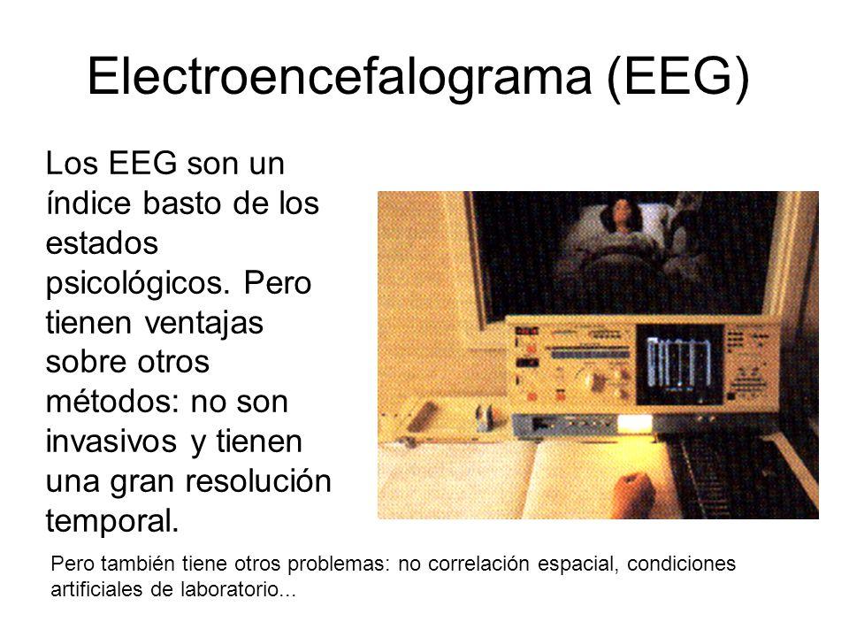 Electroencefalograma (EEG)