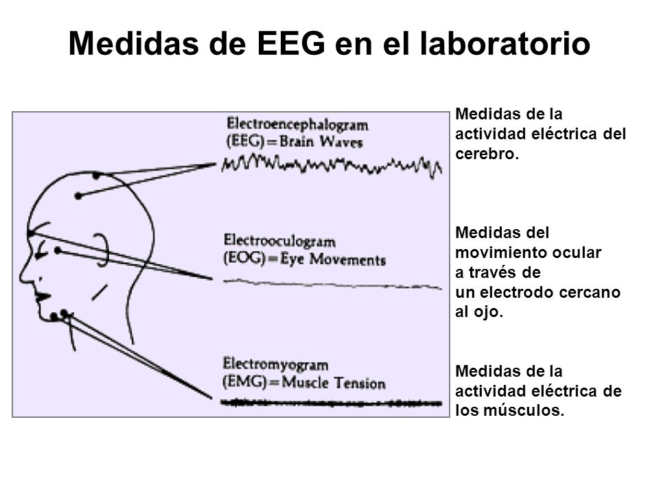 Medidas de EEG en el laboratorio