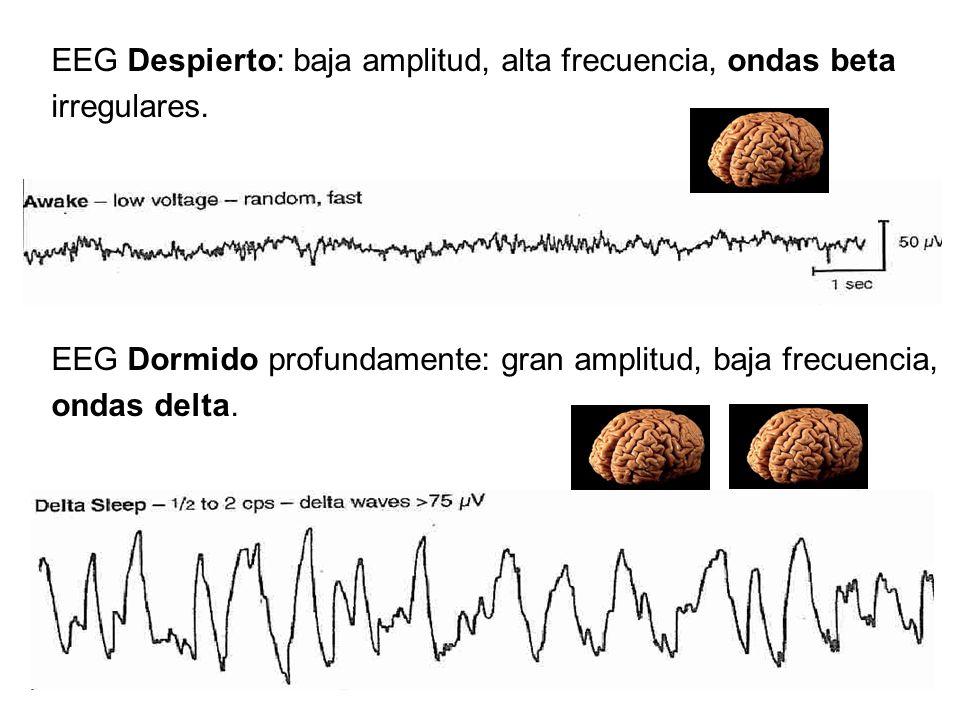 EEG Despierto: baja amplitud, alta frecuencia, ondas beta