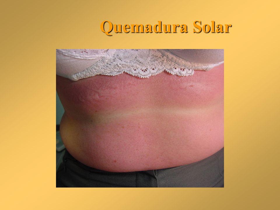 Quemadura Solar