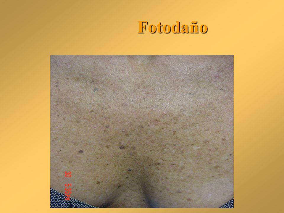Fotodaño