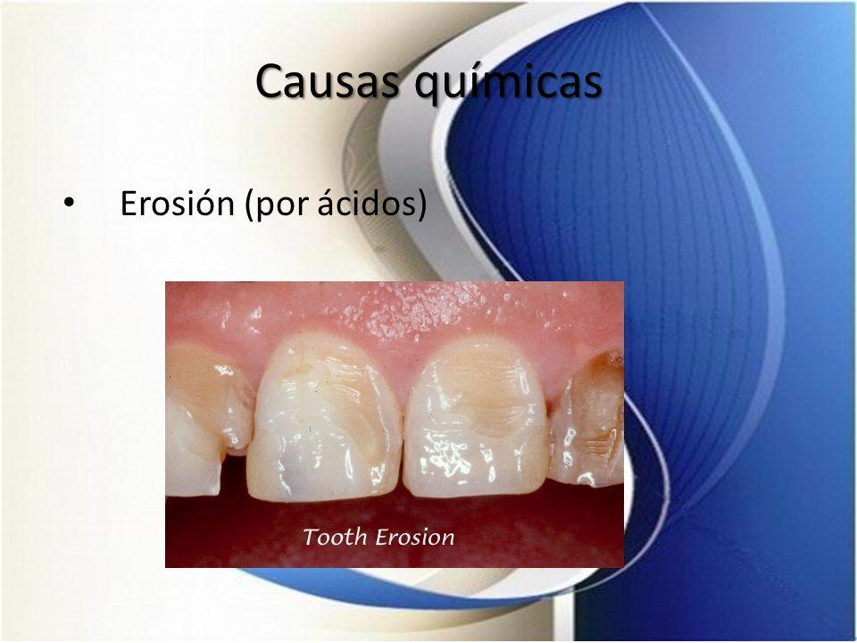Causas químicas Erosión (por ácidos)