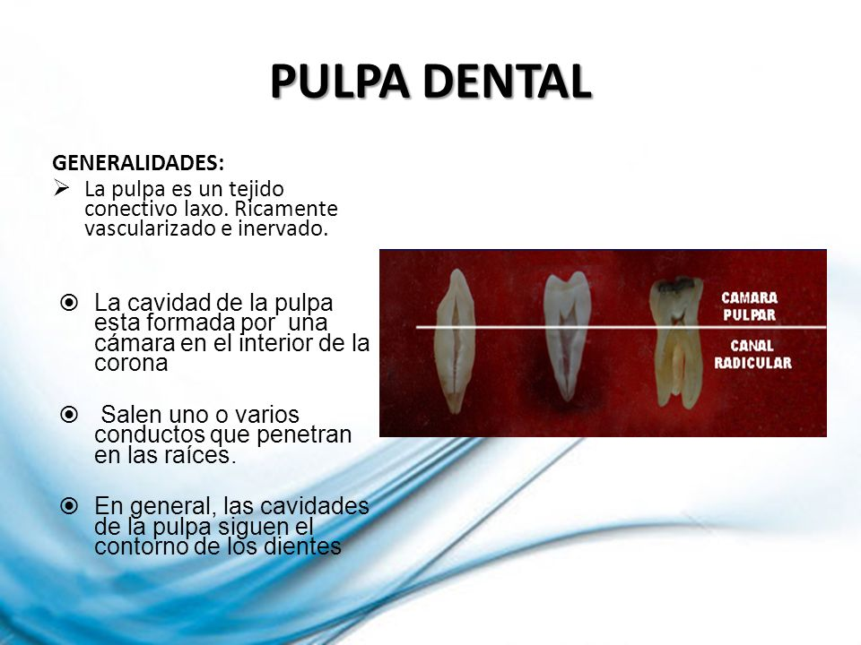 PULPA DENTAL GENERALIDADES: