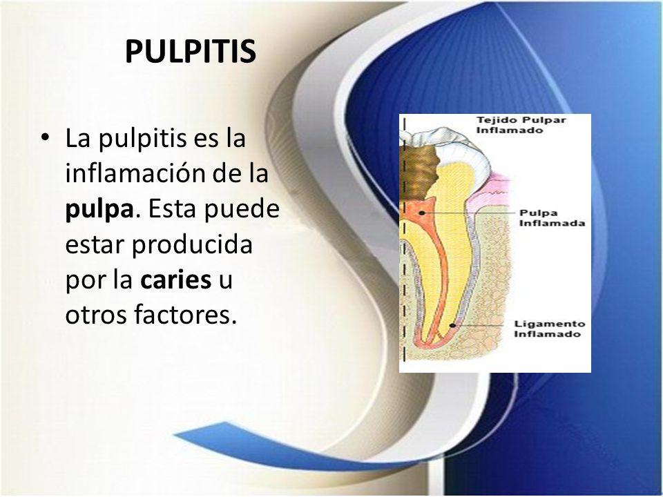 PULPITISLa pulpitis es la inflamación de la pulpa.