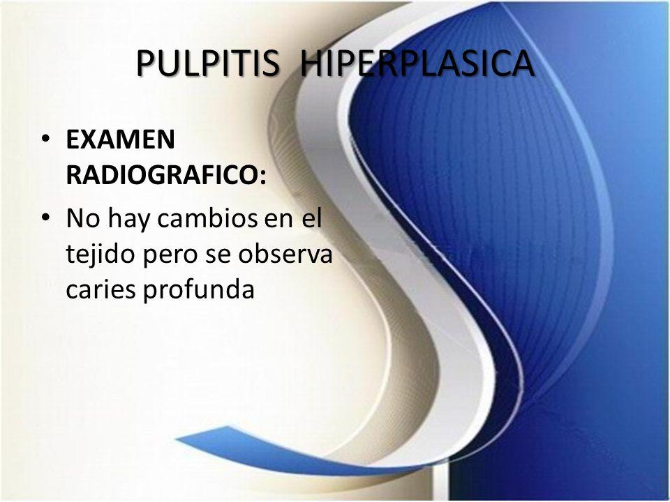 PULPITIS HIPERPLASICA