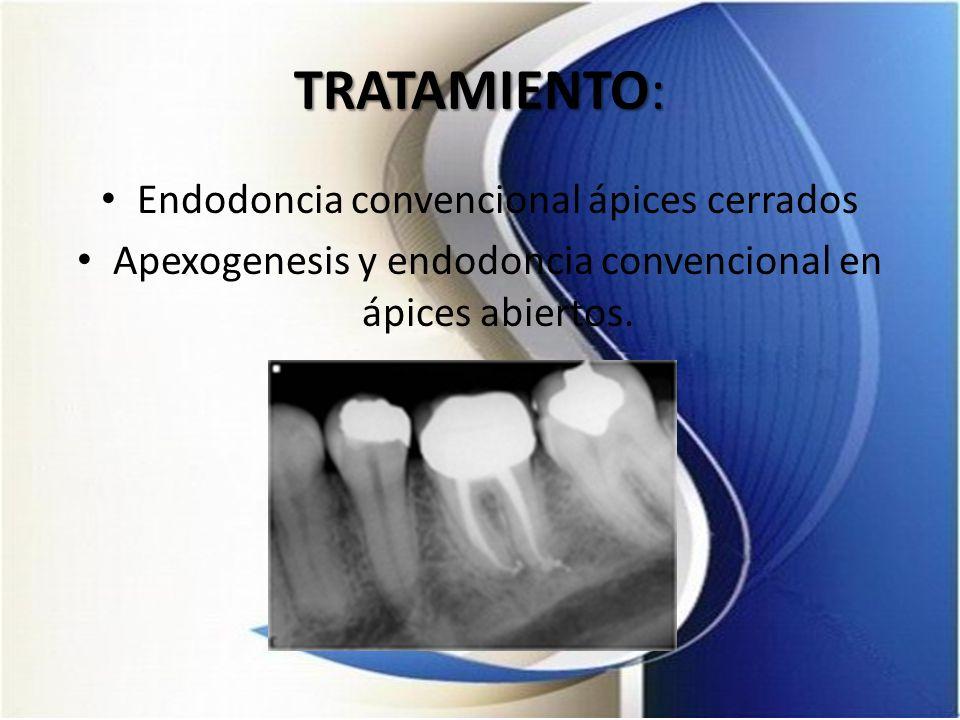 TRATAMIENTO: Endodoncia convencional ápices cerrados