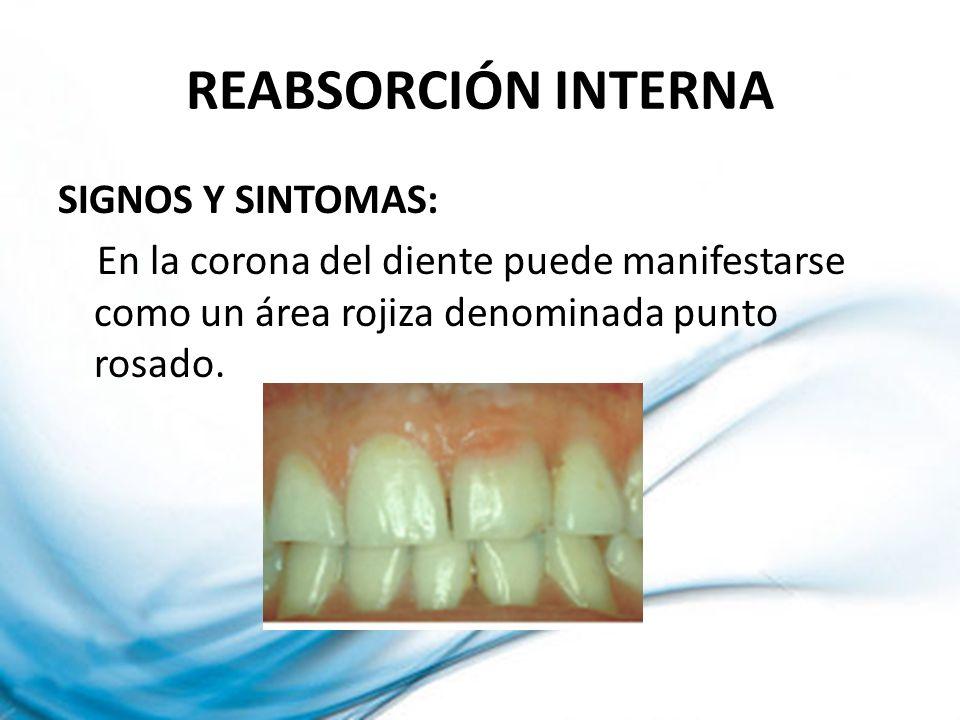REABSORCIÓN INTERNA SIGNOS Y SINTOMAS: En la corona del diente puede manifestarse como un área rojiza denominada punto rosado.
