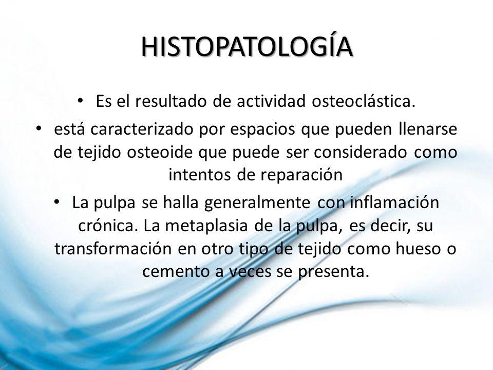 Es el resultado de actividad osteoclástica.