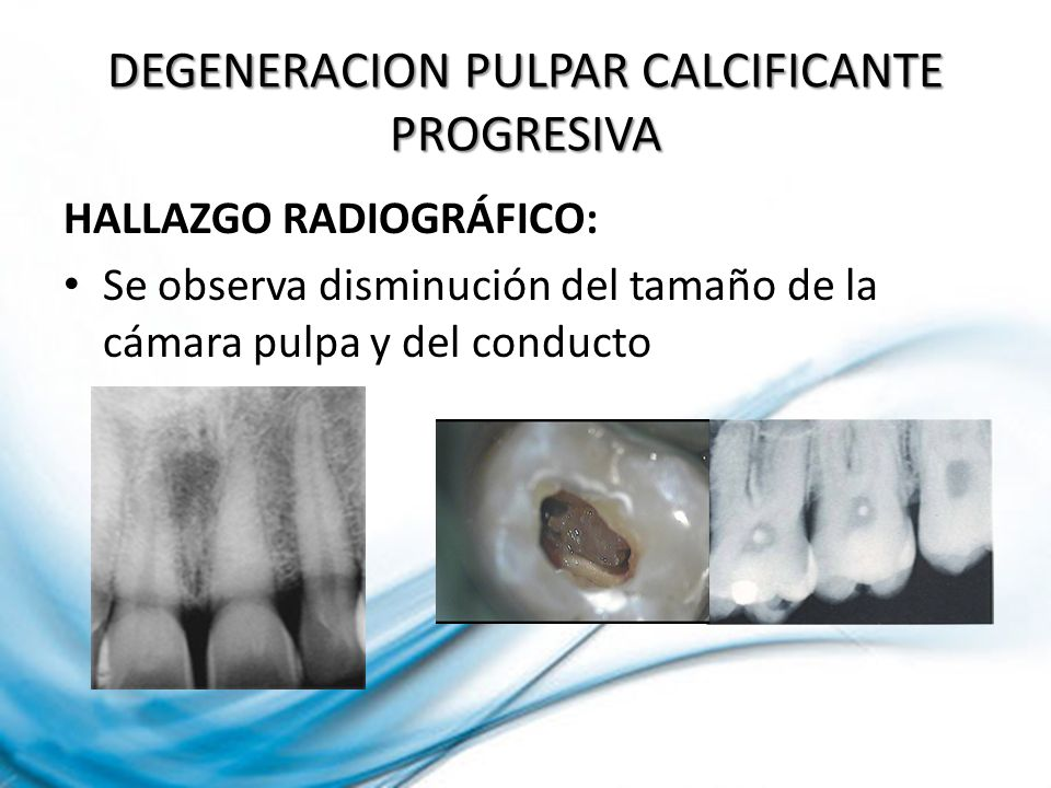 DEGENERACION PULPAR CALCIFICANTE PROGRESIVA